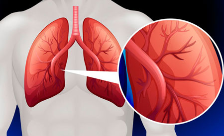 mi a pulmonalis hipertónia
