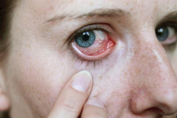 magas vérnyomás hatása a szemre magas vérnyomás kezelése fiatalokban