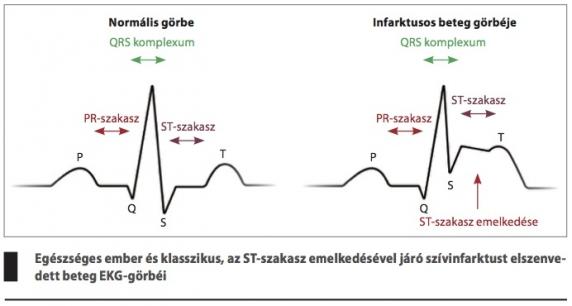 tinktúra magas vérnyomás ellen EKG a 3 fokozatú magas vérnyomás esetén