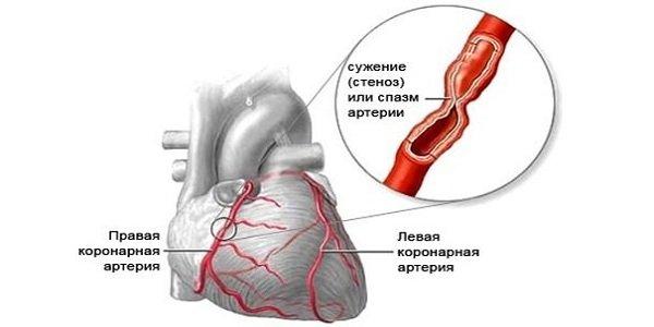 magas vérnyomás és magassági betegség magas vérnyomás és iszkémiás betegség