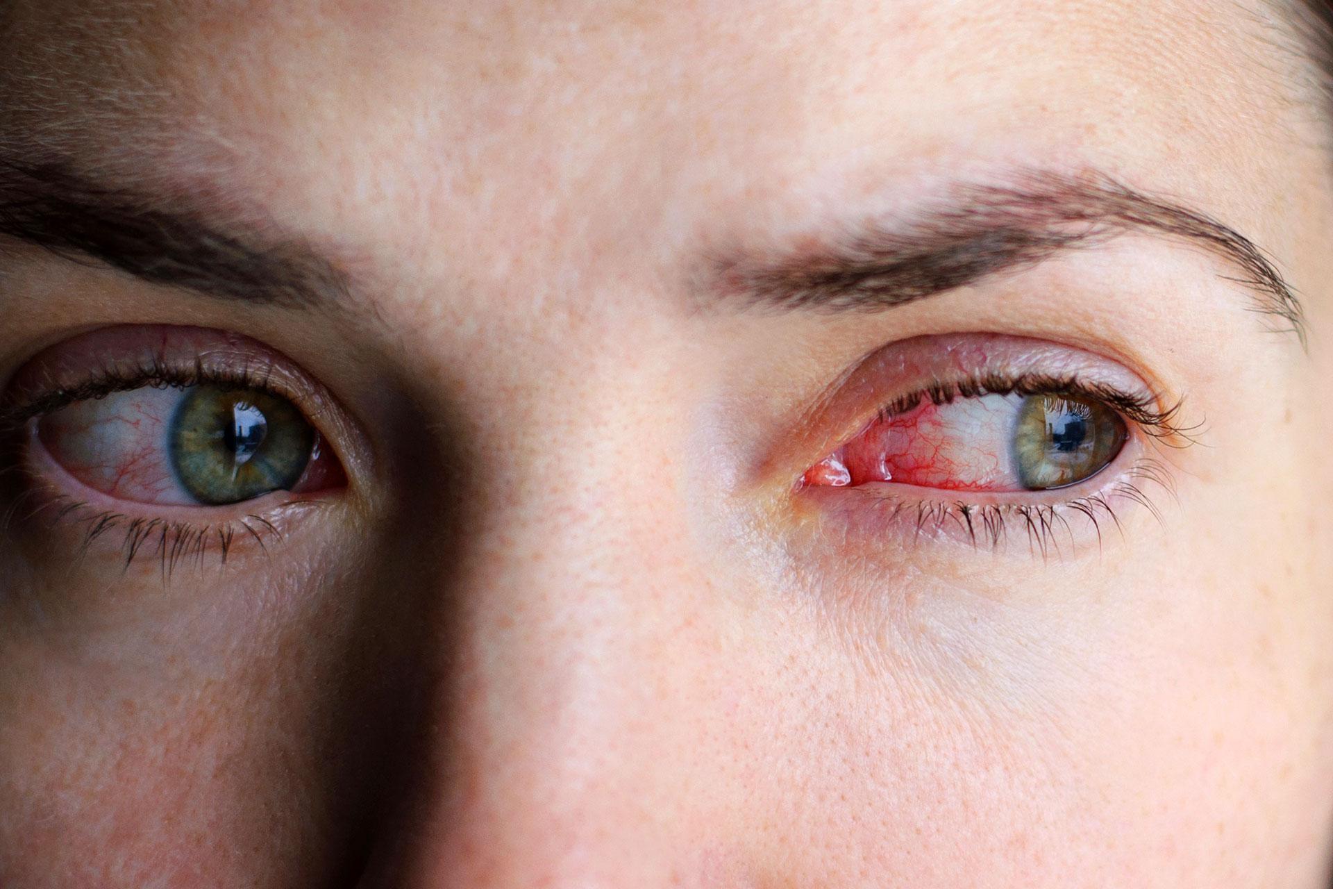 A duzzadt szemek leggyakoribb okai - HáziPatika
