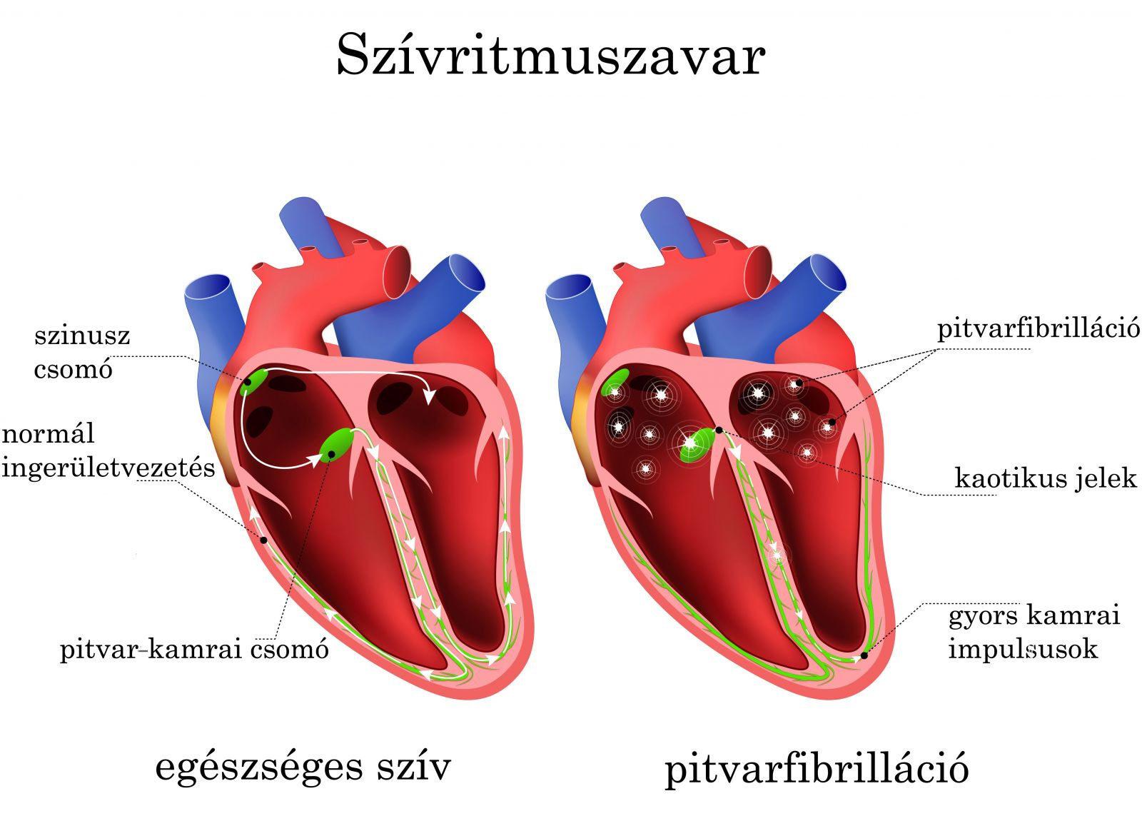 szív tachycardia és magas vérnyomás béta-blokkolók a magas vérnyomás listájához