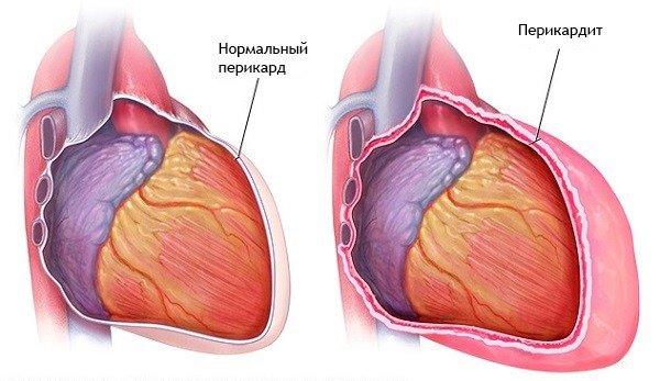 magas vérnyomás kezdők kezelése magas vérnyomás diéta