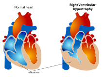 Hipertenzív szívbetegség