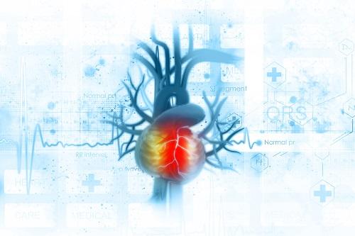 kardiomiopátia és magas vérnyomás