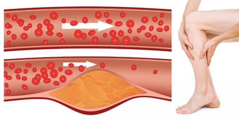 magas vérnyomás pszichoszomatikus okozza a kezelés módját