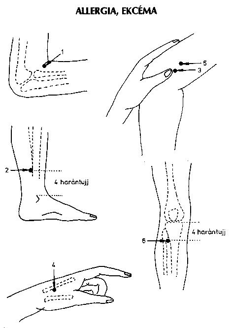 pontok a kezeken a magas vérnyomás miatt leggyakrabban magas vérnyomást figyelnek meg