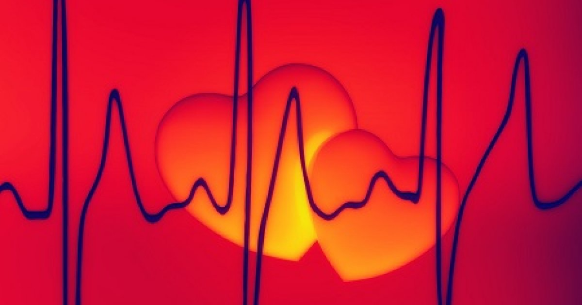 EKG változások a magas vérnyomásban magas vérnyomás esetén fogyatékossági csoportot adjon