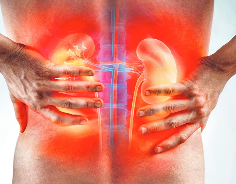 Vesegyulladás 11 oka, 7 tünete és 10 kezelési módja