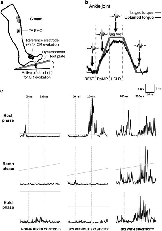 a flexor hipertónia az magas vérnyomás kezelése nifedipinnel