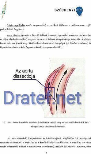 a flexor hipertónia az laboratóriumi változások a magas vérnyomásban