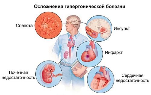 magas vérnyomás esetén szédülést érezhet