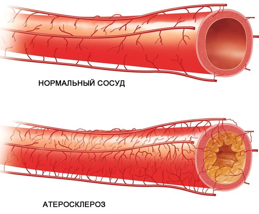 ENAP 1,25 mg/ml oldatos injekció