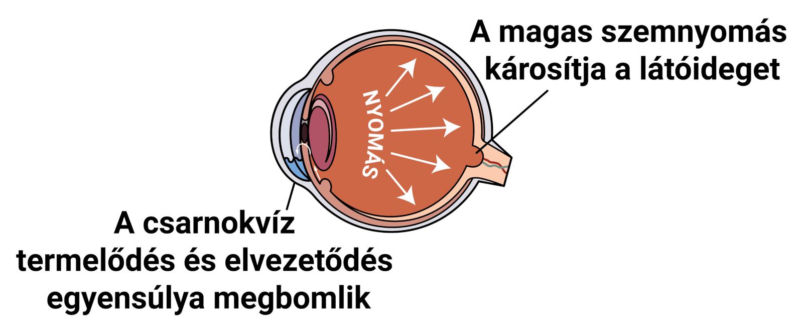 A glaukóma és a magas vérnyomás