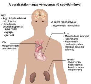 hogyan lehet megakadályozni a magas vérnyomás kialakulását temporális lebeny hipertónia