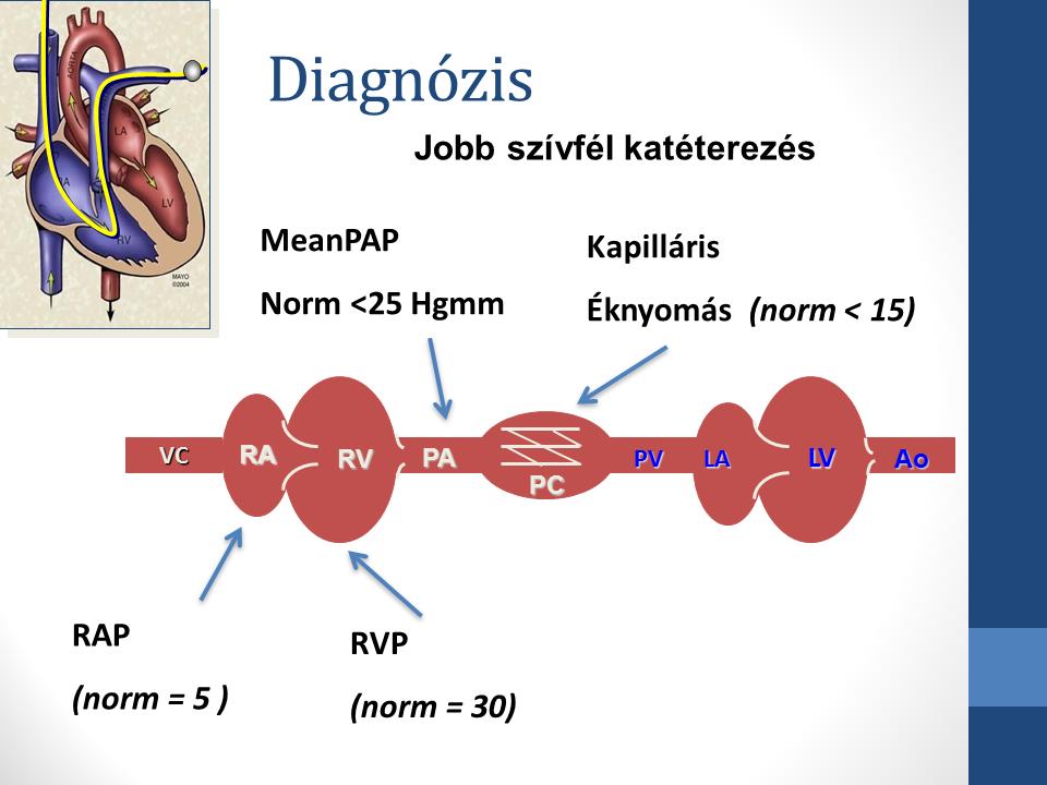 magas vérnyomás 3 fokozat leírása hogyan fáj a szív magas vérnyomás miatt
