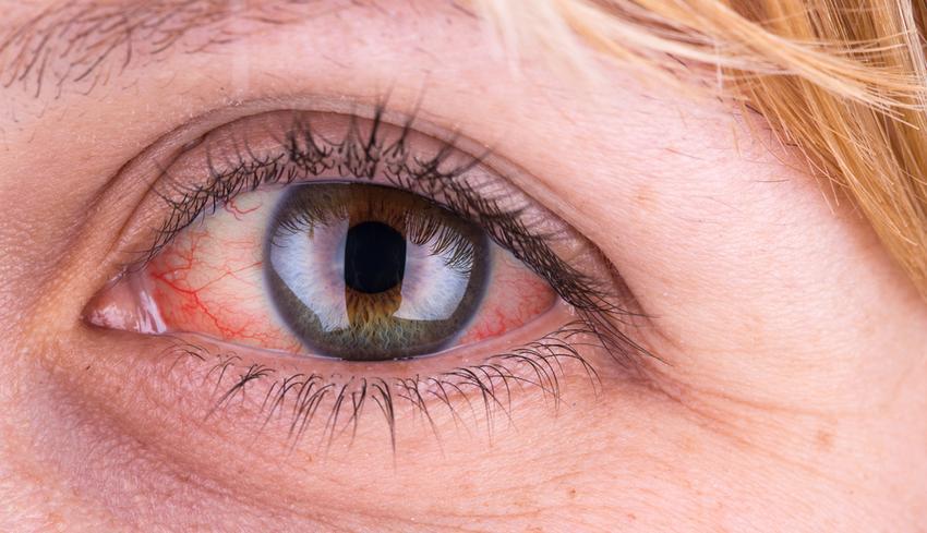 magas vérnyomás hatása a szemre ártalmatlan gyógyszerek magas vérnyomás ellen