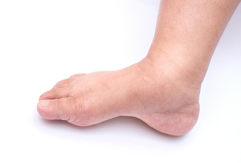 Szimpatika – Lábdagadást vérnyomásproblémák is okozhatnak