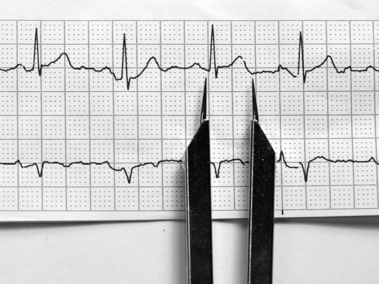 EKG változások a magas vérnyomásban magas vérnyomás új megközelítés