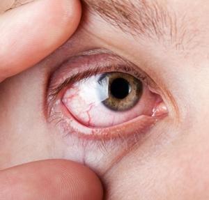 hipertónia szeme fotó magas vérnyomás alatt a nyomás csökken