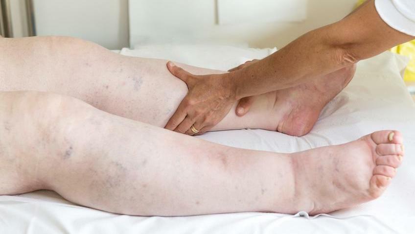 magas vérnyomás duzzadó lábak mit kell tenni