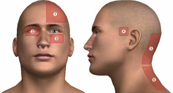 magas vérnyomás fejfájás nélkül az onmc és a magas vérnyomás következménye