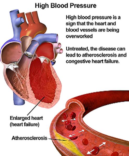 magas vérnyomás visszavonulhat drotaverin magas vérnyomás esetén