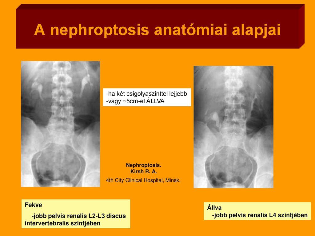 Nephroptosis: Mit kell tudni - Urológia / nefrológia -
