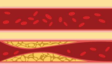 vizeletvizsgálat a 2 fokozatú magas vérnyomás esetén magas vérnyomás és intraokuláris nyomás