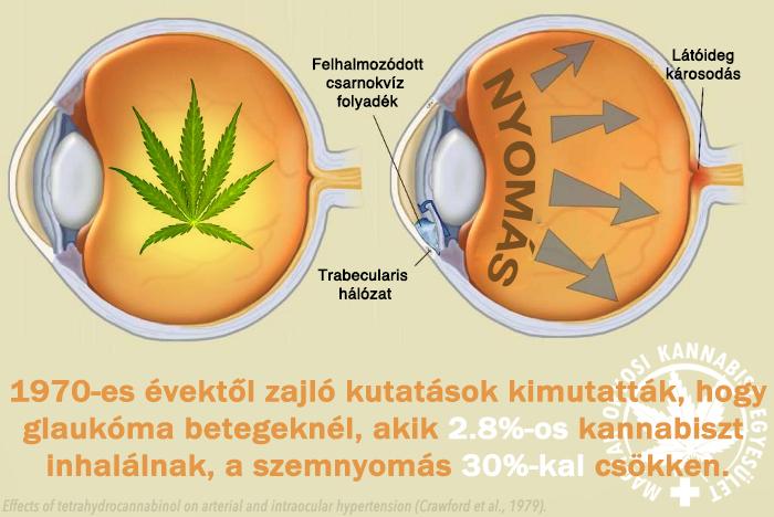magas vérnyomású glaukóma magnézium magas vérnyomás esetén intramuszkulárisan
