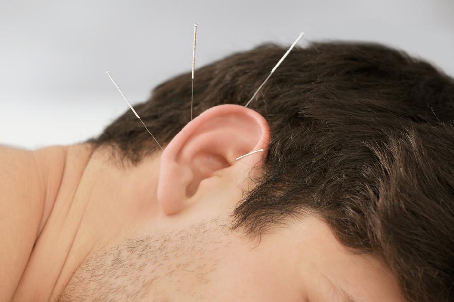 Bizonyított tény: a vérnyomás akupunktúrával csökkenthető - Blikk Rúzs