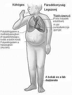 A magas vérnyomás ICD osztályozása