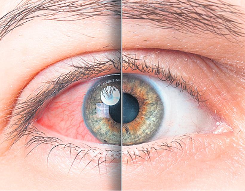 a szem magas vérnyomásának kezelése