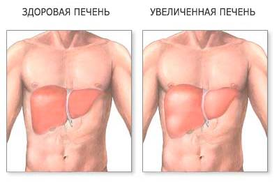 A máj hepatikus tünetei és kezelése, beleértve a zsírmáj hepatocyt
