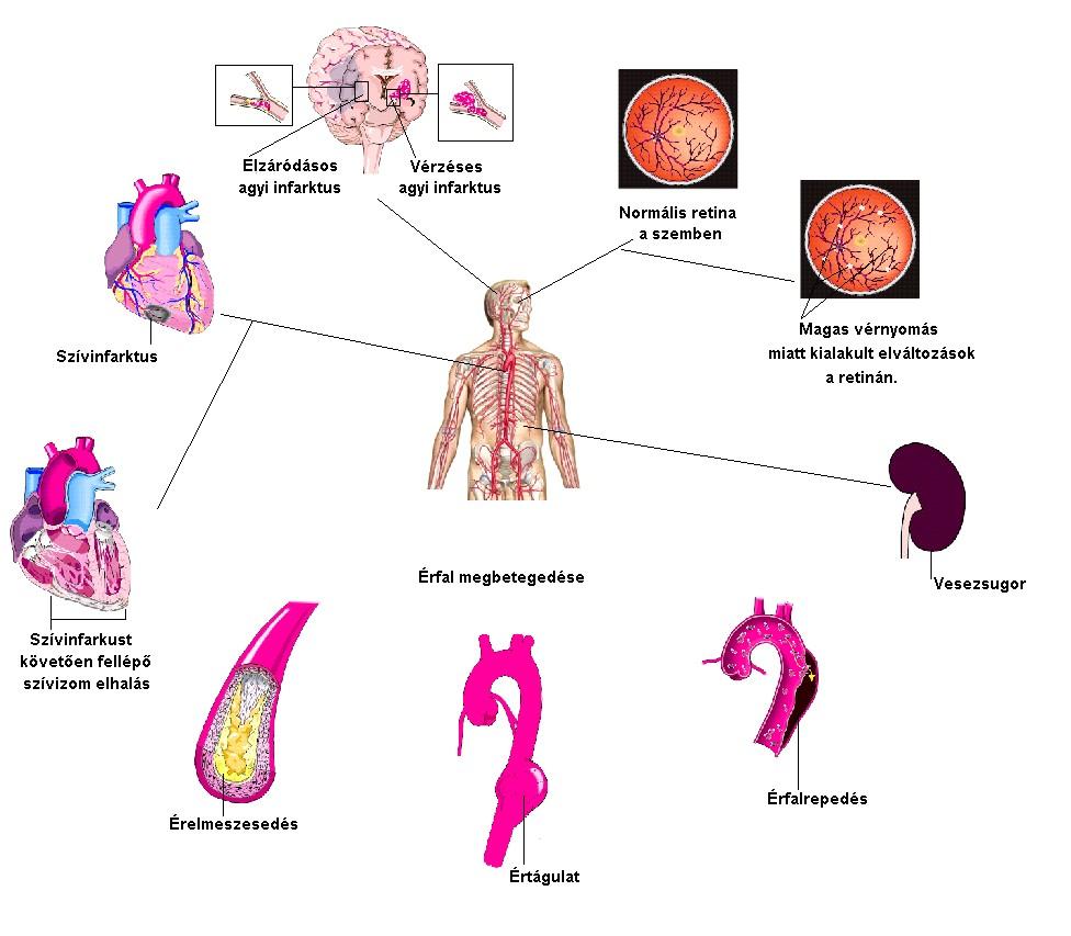 magas vérnyomás név magas vérnyomás alacsony alacsonyabb nyomás