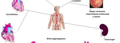 hipertónia cervicothoracicus osteochondrosissal magas vérnyomás légszomj