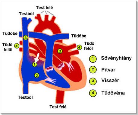 mi a helyes pitvari magas vérnyomás mit adjon magas vérnyomás esetén